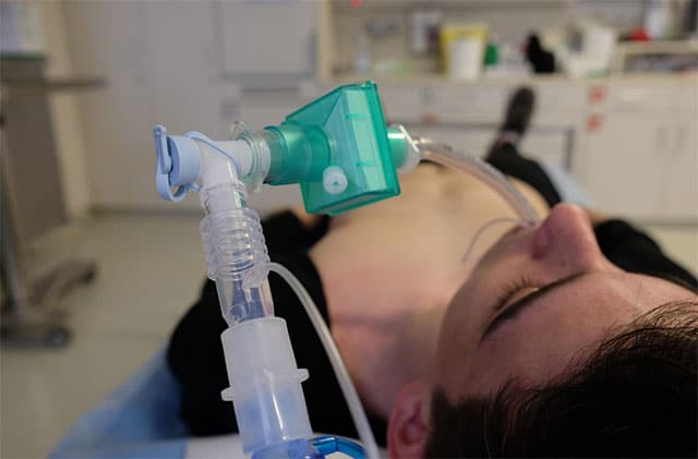 Person with ventilator- how long can someone be on life support